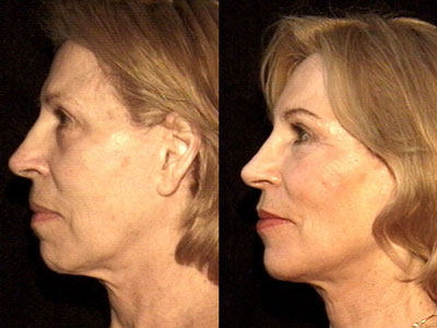 This patient had a prvious face lift a space lift restores more